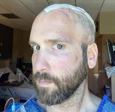 James Hall looking at camera with bandage on brain surgery scar